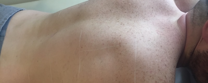Back and shoulders with severe ingrown problems due to years of waxing shows no ingrowns and great reduction in hair after 8 treatments