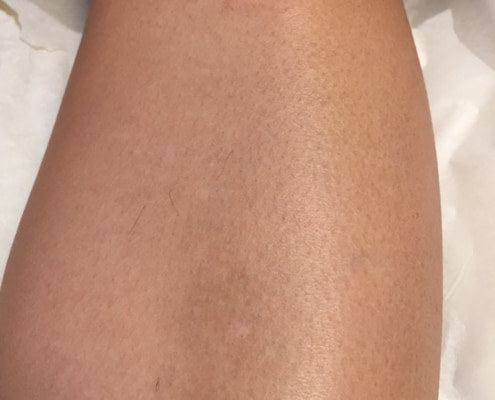 Lower legs after 6 treatments and 3 months no shaving. Close-up shows remaining hair